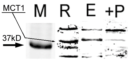 Western Blot Showing MCT1