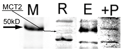 Western Blot Showing MCT2