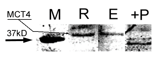 Western Blot Showing MCT4