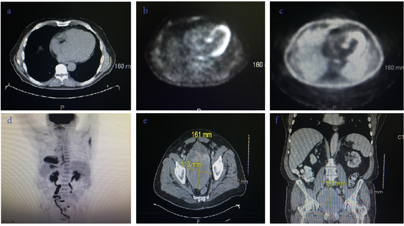 Figure 1: a. Transverse CT without contrast showing lung mass in the left thoracic cavity. b. Transverse PET scan without contrast showing lung mass in the left thoracic cavity. c. Transverse PET scan with contrast showing enhanced borders of the lung mass in the left thoracic cavity. d. A/P PET scan results showing STAT 6 (+) Metastasis to the prostrate. e A/P, Tranverse, and Cranio-Caudal CT with dimensions of Solitary Fibrous Tumor of the Prostate.