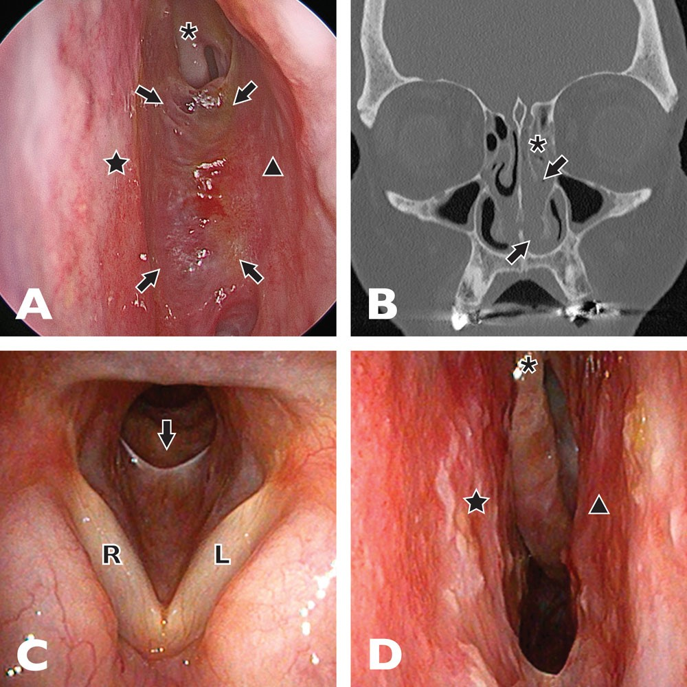 a) Endoscopic view of left nasal cavity demonstrating extensive scarring (arrows) between the nasal septum (star) and lateral nasal wall (triangle). The root of the middle turbinate attachment is also shown (asterisk) (b) CT demonstrating scarring (arrows) and root of middle turbinate (asterisk)