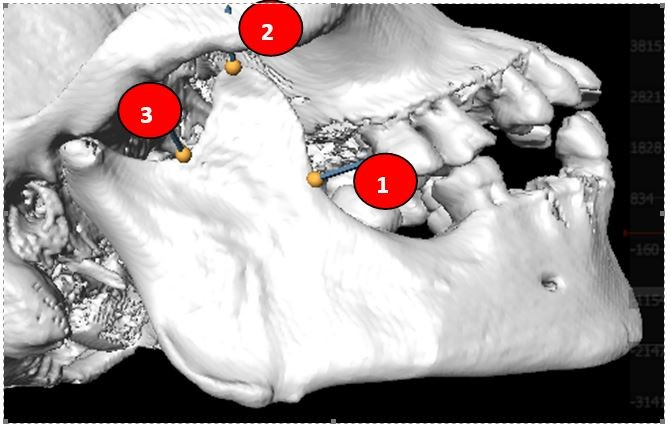 Figure 1: Landmarks on the right side of coronoid process (1-3).