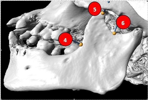 Figure 2: Landmarks on the left side of coronoid process (4-6).