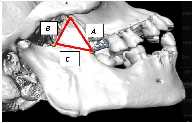 Figure 3: The border lines (A-C) formed on the right coronoid process.