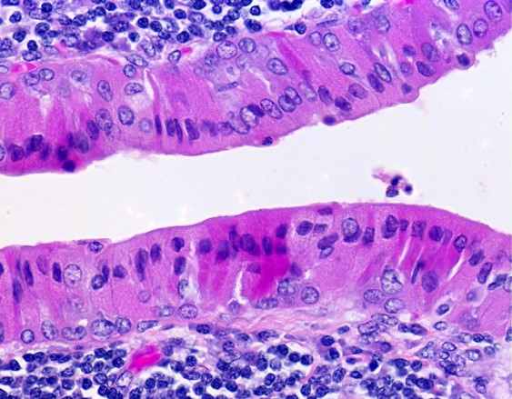 Warthin 's tumour with oncocytes and lymphoid infiltrate