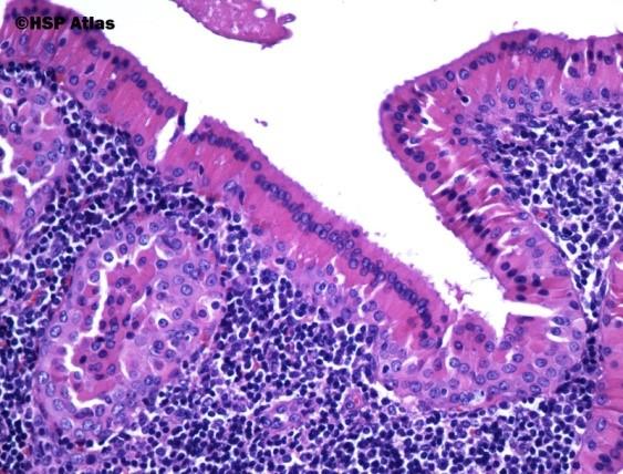 Warthins tumour with uniform epithelium overlying lymphoid follicles [18].
