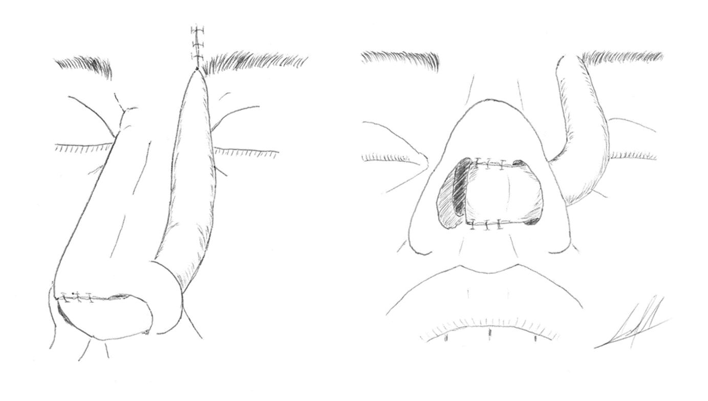 The forehead flap is passed through an incision in the alar-facial groove to reach the columella